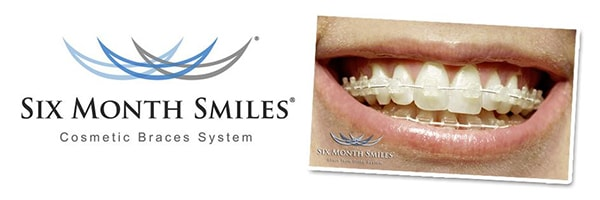 Six Month Smiles' clear cosmetic braces can achieve a straight smile in 6 months.