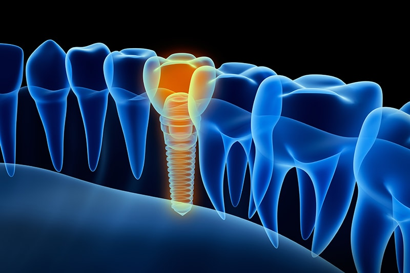 Graphic showing how implants are placed into the mouth