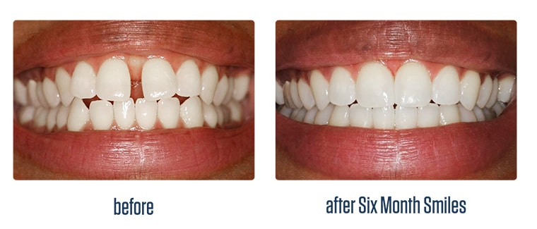 Before and after case of using Six Month Smiles