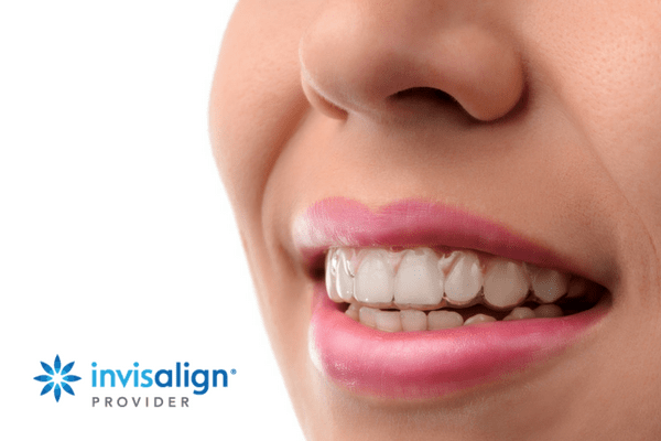Closeup image of a smile with logo showing Dr. Taylor is a Certified Invisalign Provider in Renton