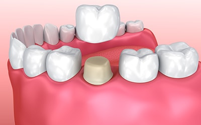 3D imaging of what a dental crown looks like